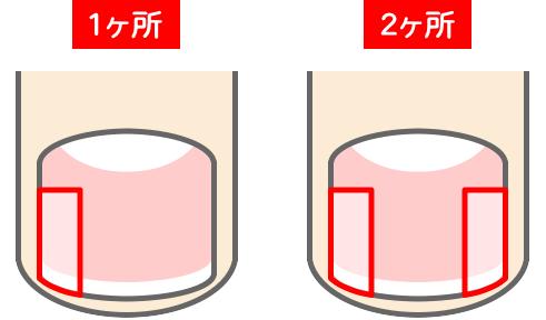 巻き爪|大宮ももた接骨院