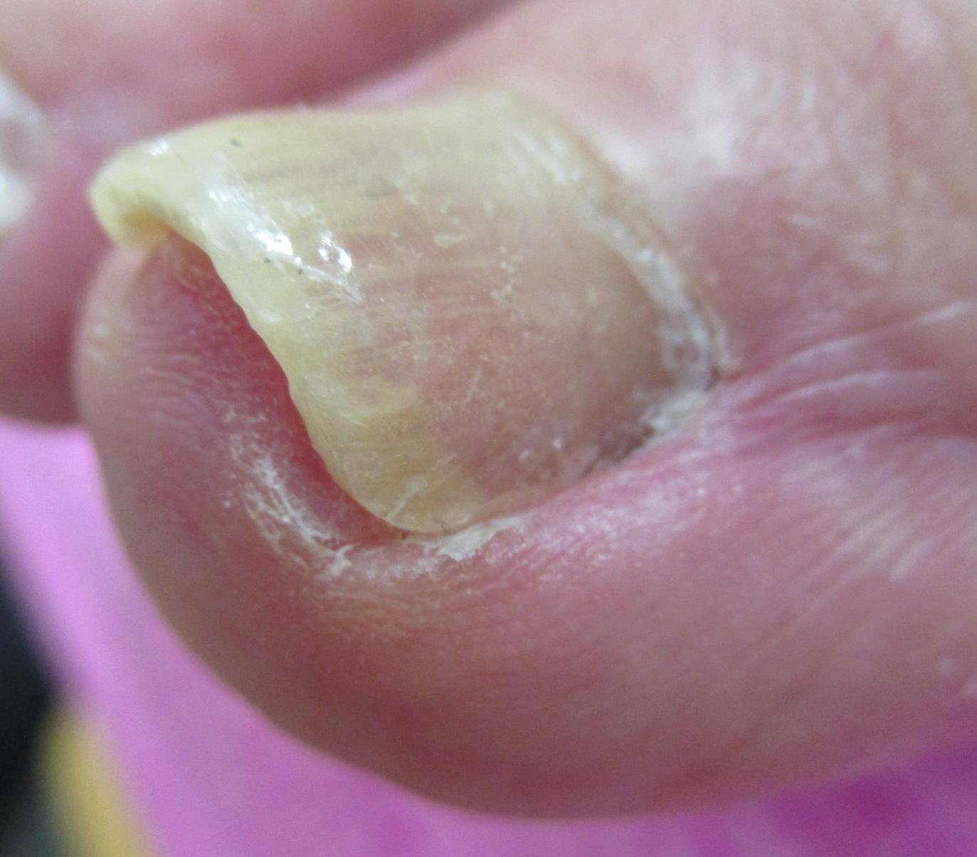巻き爪 施術後