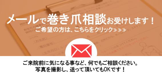 メール問い合わせ